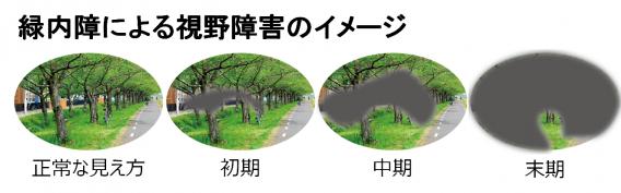 pic_ryokunaisho
